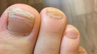 足の爪に入っている線が気になってきた 原因と対処法って 大阪