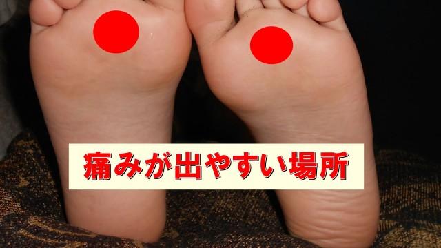 痛い 足 の 指 付け根